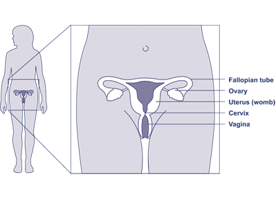 Diagram of female body showing reproductive system and the location of the